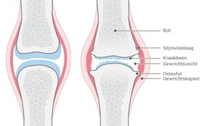 Door goed advies van onze fysiotherapeuten kunt u beter leven met artrose