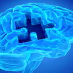 Fysiotherapie voorkomt, stabiliseert en vermindert problemen bij Parkinson