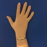steunkous hand aanmeten oudenbosch